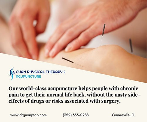 using sterile needles at our Acupuncture clinic Gainesville Fl