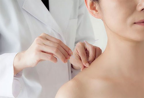 Acupuncture for back pain in Gainesville