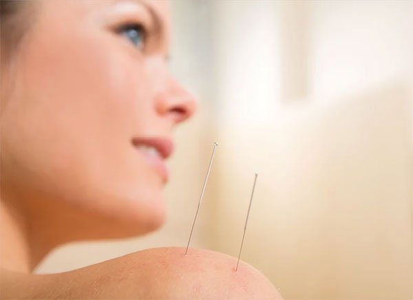 Getting Acupuncture Gainesville
