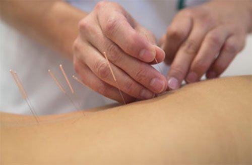 Medicaid Acupuncture