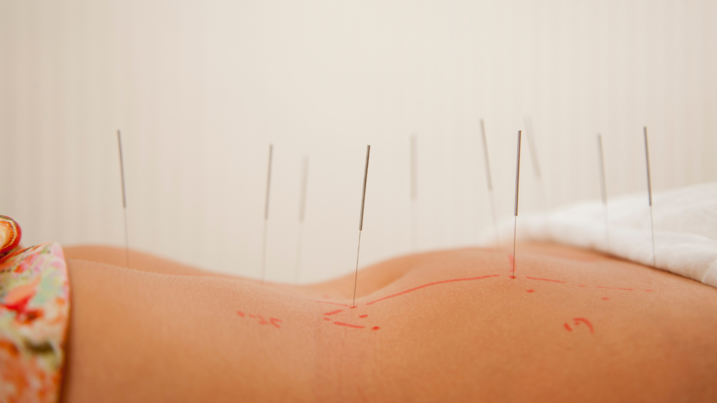 acupuncture Gainesville