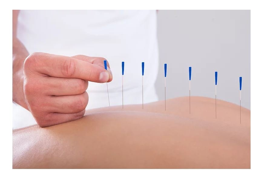acupuncture Gainesville Fl