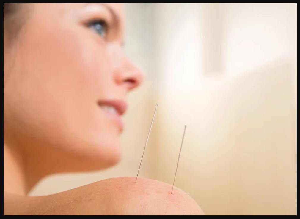 Acupuncture in Gainesville